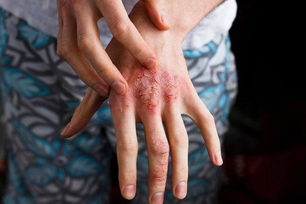 irritan temas dermatiti