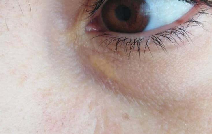 Ksantelazma (Göz kapaklarında yağ birikimi)